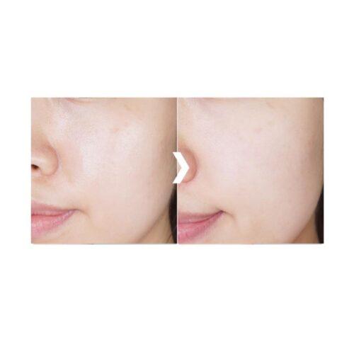 espuma limpiadora facial