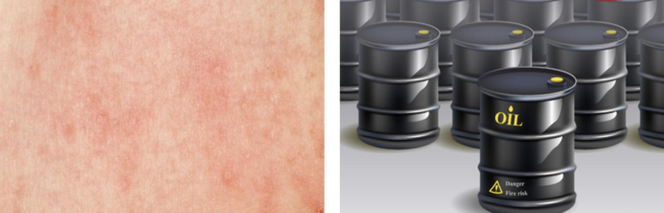 Reacción de la piel por aceites minerales en cosméticos